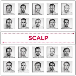 SCALP / VICTIMS OF HATE